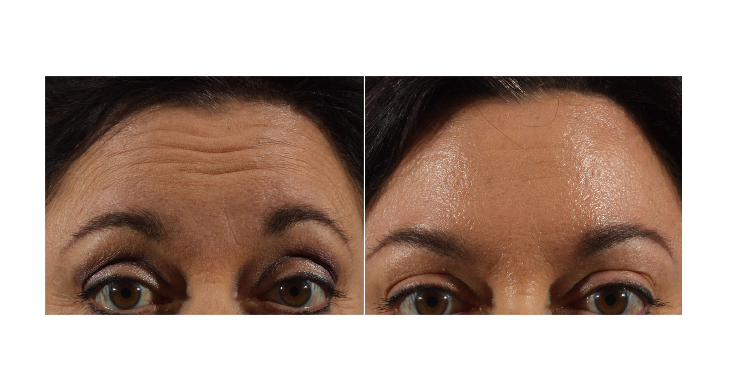 Laser Skin Tightening New York City
