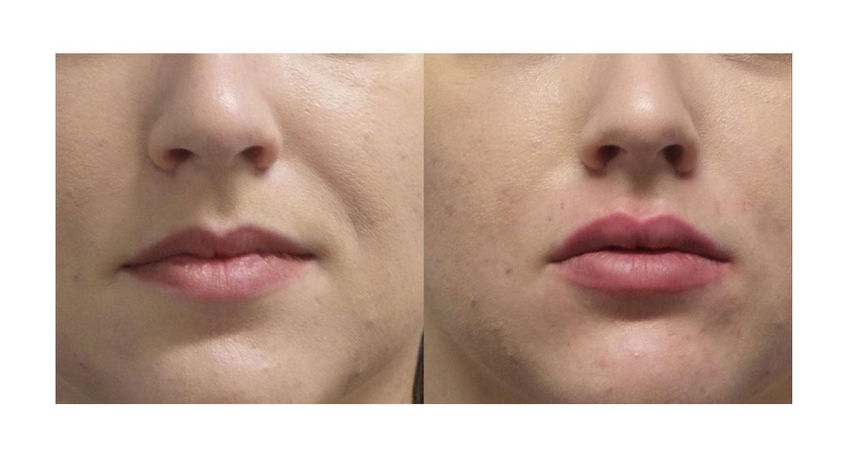 Laser Skin Tightening New York City
