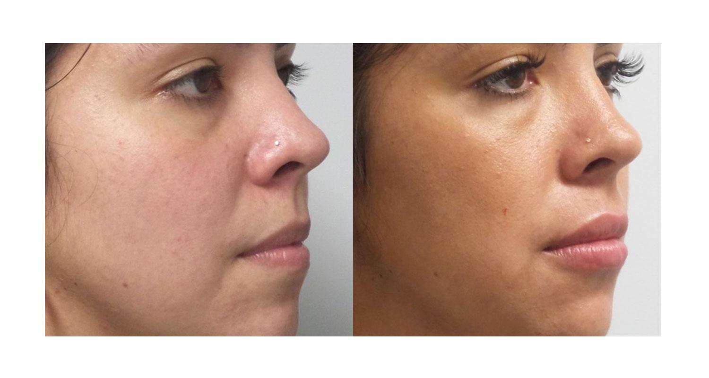 Laser Dermatology Upper East Side