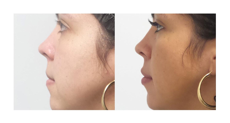 Cosmetic Dermatology Upper East Side